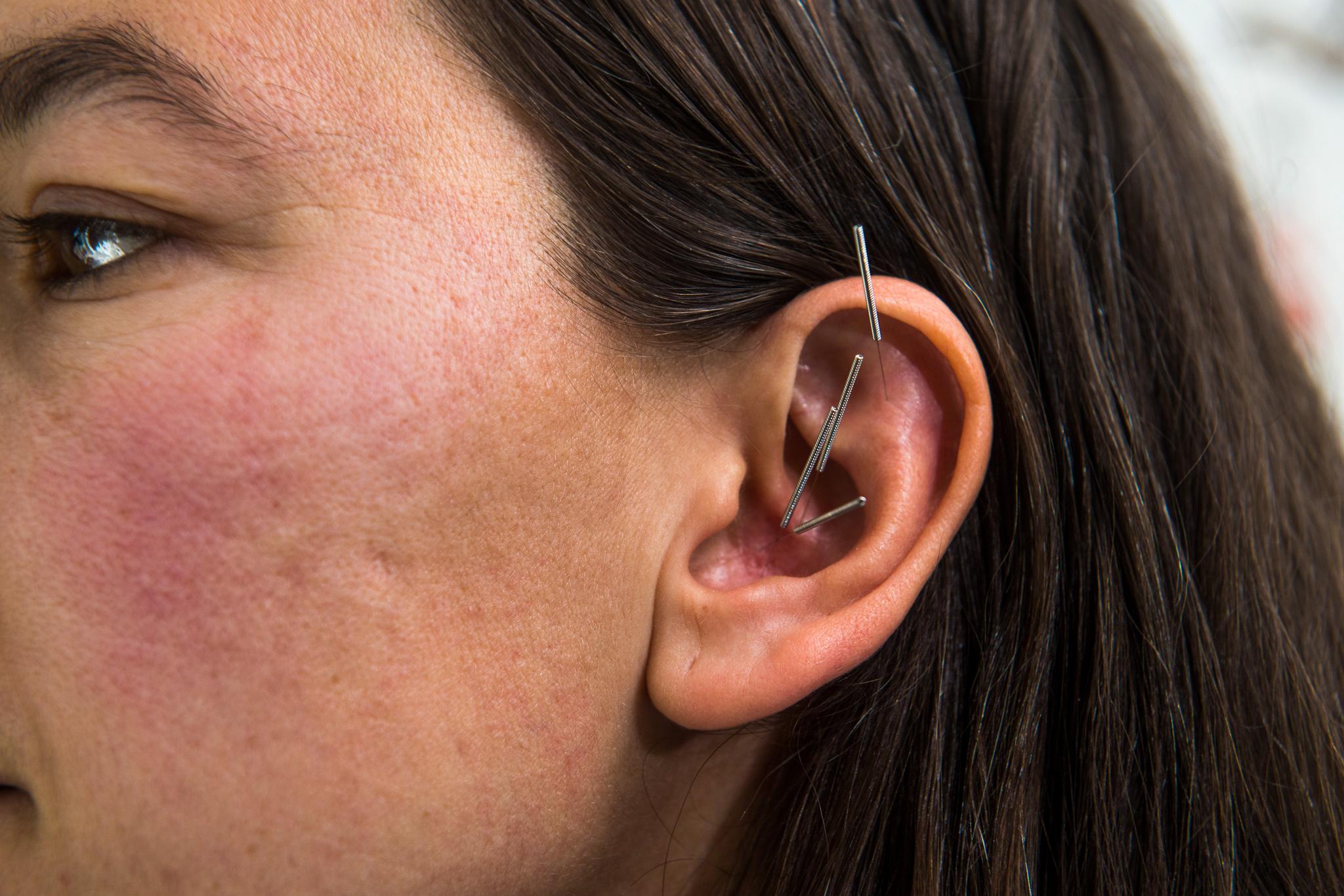 Johanna's Boulder Acupuncture Treatments for Pain