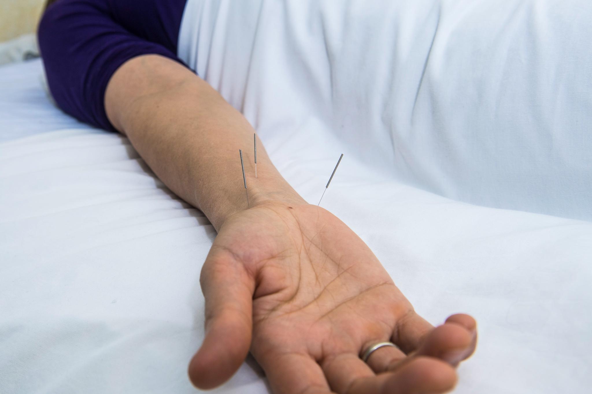 Johanna's Acupuncture Treatments