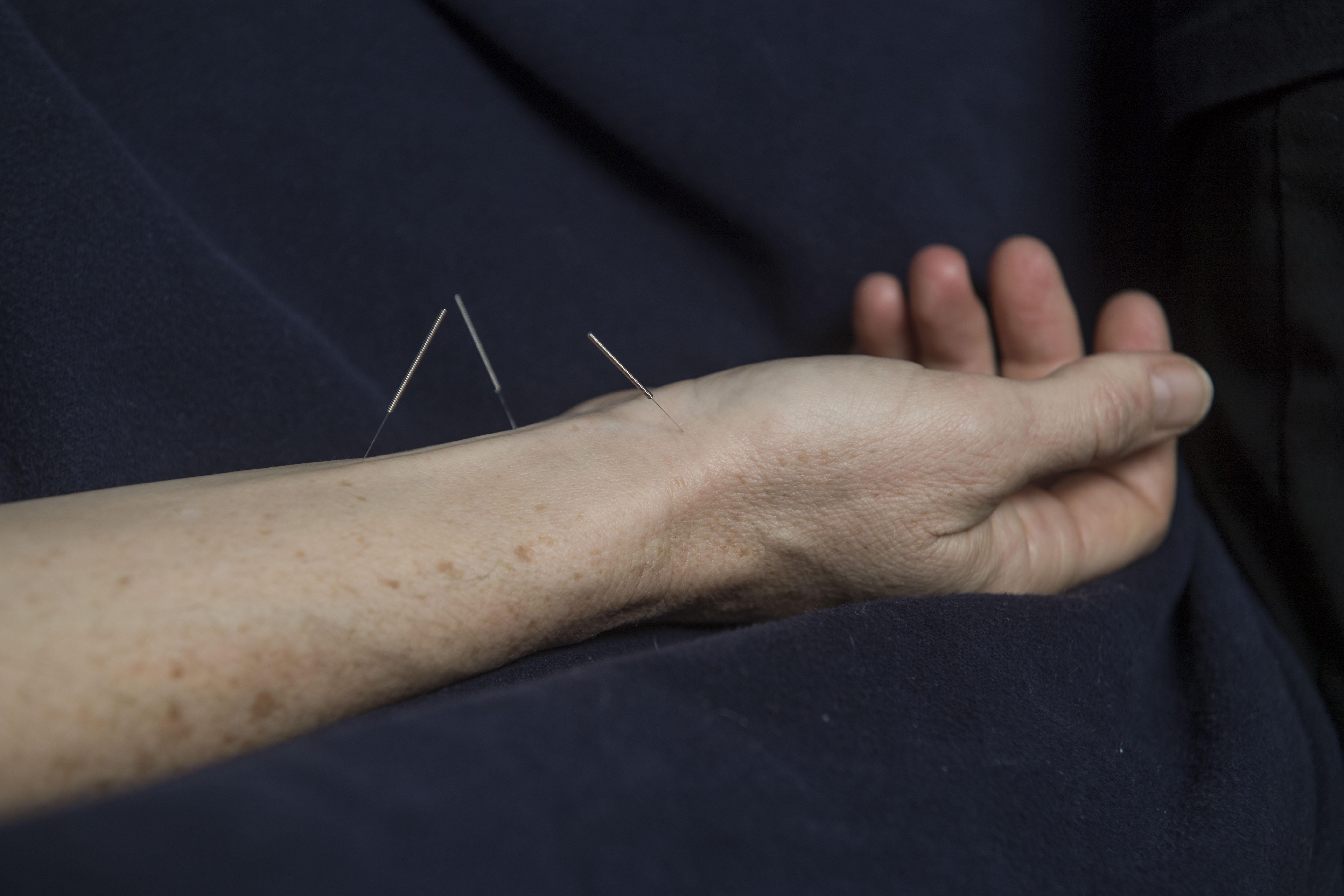 Johanna's Acupuncture Boulder Acupuncture